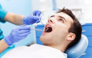 Reverse receding gums